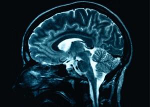 Naše mysl potřebuje vyčistit